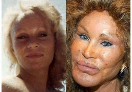jocelyn_wildenstein-40034c20